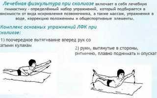 Комплекс упражнений при сколиозе для детей лфк физическая культура