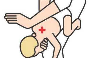 Первая помощь, если ребенок подавился…