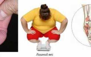 Массаж и лечебная гимнастика при плоско-вальгусной установке стоп и плоскостопии