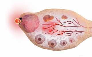 Высокий ттг и пролактин.бесплодие 1ст