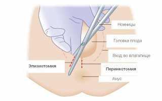 Через сколько заживают внутренние швы после родов